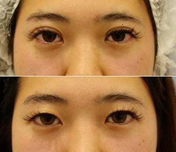 湘南美容クリニック 新宿本院の目・二重の整形の症例写真
