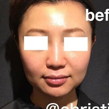 CHRISTINA clinic GINZA(クリスティーナクリニック銀座)の鼻の整形の症例写真[ビフォー]