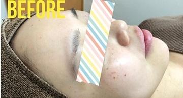 エストクリニックのシミ治療(シミ取り)・肝斑・毛穴治療の症例写真[ビフォー]