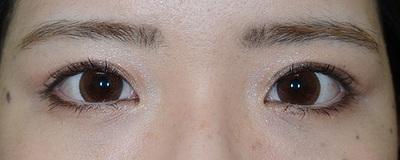 眼瞼下垂二重修正[アフター]
