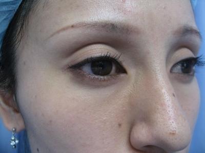 上眼瞼くぼみヒアルロン酸注入の症例写真[ビフォー]