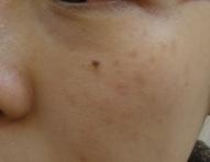 新宿ビューティークリニックのホクロ除去・あざ治療・イボ治療の症例写真[ビフォー]