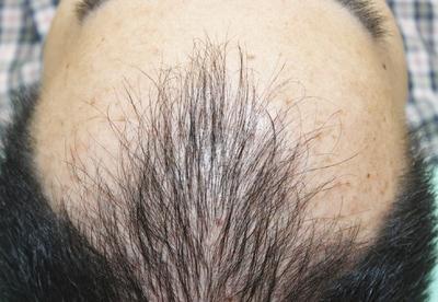 頭髪治療(薄毛、抜け毛治療)の症例写真[ビフォー]