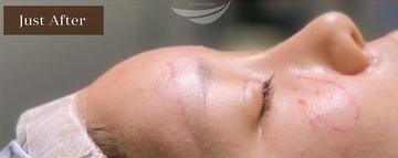 アーククリニックの輪郭・顎の整形の症例写真[アフター]