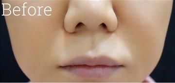 ジョウクリニックの口元・唇の整形の症例写真[ビフォー]
