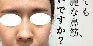 KOBE CLINIC 美容皮膚科・美容クリニックの症例写真[アフター]