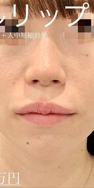 ルラ美容クリニックの口元・唇の整形の症例写真[アフター]