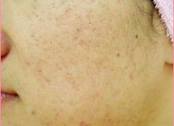 城本クリニックのニキビ治療・ニキビ跡の治療の症例写真[アフター]