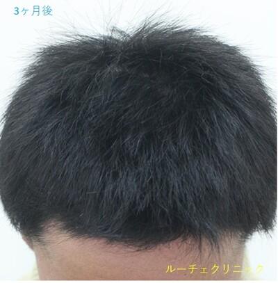 ARTAS(アルタス)自毛植毛術の症例写真[アフター]