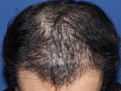 メスを使わない、切らない自毛植毛「MIRAI法」1,400株の症例写真[アフター]