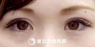 東京美容外科の目・二重の整形の症例写真[アフター]