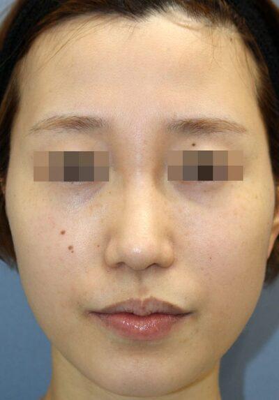 鼻中隔延長術+鼻背部軟骨移植術手術後6ヶ月の症例写真[アフター]