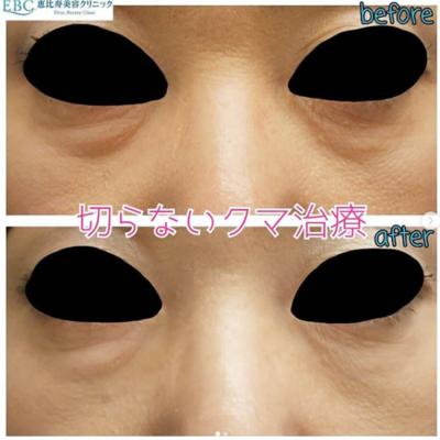 目の下のクマ治療の症例写真
