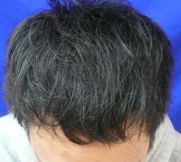 広島プルミエクリニックの薄毛治療・AGA・発毛の症例写真[アフター]