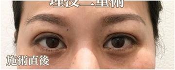 西宮SHUHEI美容クリニックの目・二重の整形の症例写真[アフター]