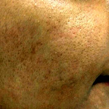 佐井泌尿器科・皮フ科クリニックのニキビ治療・ニキビ跡の治療の症例写真[アフター]