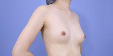 湘南美容クリニック 新宿本院の豊胸・胸の整形の症例写真[ビフォー]