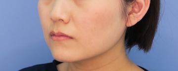 湘南美容クリニック武蔵小杉院の脂肪吸引の症例写真[アフター]