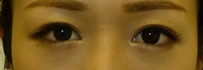 ヒアルロン酸注射による涙袋形成の症例写真[ビフォー]