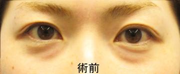 湘南美容クリニック 品川院の目元の整形、くま治療の症例写真[ビフォー]