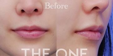 THE ONE.の口元・唇の整形の症例写真[ビフォー]