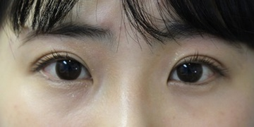 カリスクリニックの目・二重の整形の症例写真[アフター]