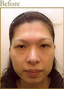 頬下顎骨形成術[ビフォー]