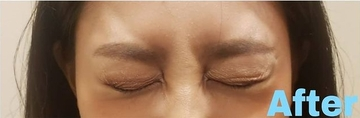 金山美容クリニックの顔のしわ・たるみの整形の症例写真[アフター]