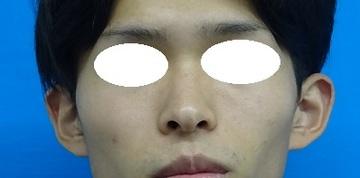TCB 東京中央美容外科の耳の整形の症例写真[ビフォー]