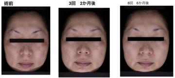 熊本かよこクリニックのシミ治療(シミ取り)・肝斑・毛穴治療の症例写真
