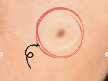 広島プルミエクリニックのほくろ除去・あざ治療・イボ治療の症例写真[ビフォー]