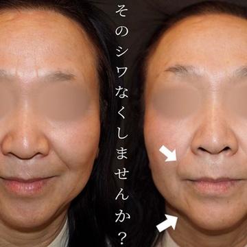 KOBE CLINIC 美容皮膚科・美容クリニックの顔のしわ・たるみの整形の症例写真