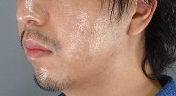 ヒアルロン酸 顎 ボリューマの症例写真[アフター]