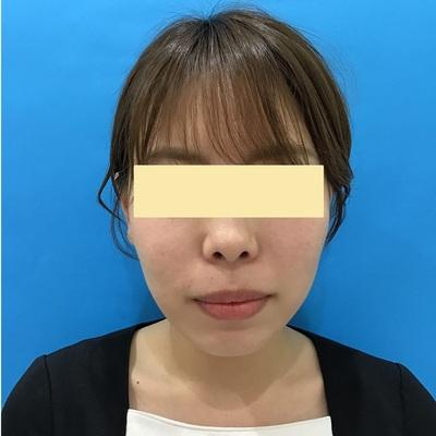 バッカルファット(頬脂肪)除去手術 術前・術後2週間の症例写真[ビフォー]