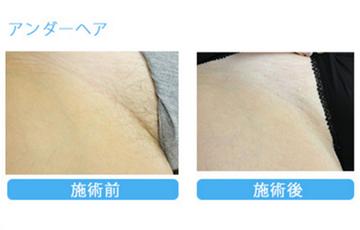 青山セレスクリニック東京青山院の医療レーザー脱毛の症例写真
