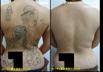 ルーチェ東京美容クリニック 池袋院のタトゥー除去(刺青・入れ墨を消す治療)の症例写真