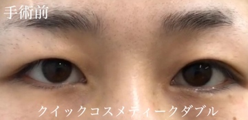 の目・二重の整形の症例写真[ビフォー]