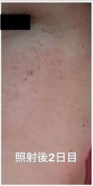 銀座長瀬クリニック 大阪院のシミ取り・肝斑・毛穴治療の症例写真[アフター]