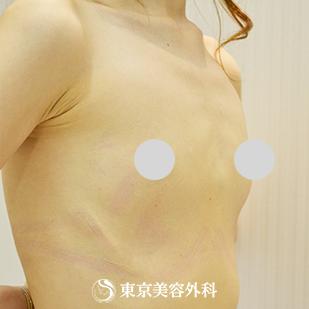 東京美容外科の豊胸・胸の整形の症例写真[ビフォー]