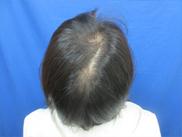 ガーデンクリニックの薄毛治療・AGA・発毛の症例写真
