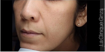 La Clinique Ginza(ラ クリニック銀座)のシミ取り・肝斑・毛穴治療の症例写真[アフター]