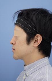 湘南美容クリニック秋葉原院の顔の整形(輪郭・顎の整形)の症例写真[ビフォー]