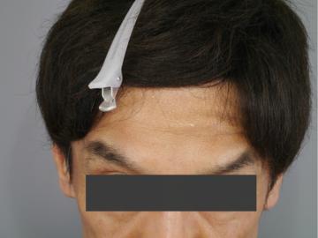 メディエスクリニックの顔のしわ・たるみの整形(リフトアップ手術)の症例写真[アフター]