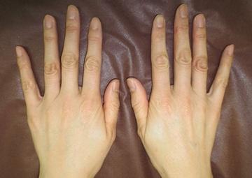 トキコクリニック 京都四条院の顔のしわ・たるみの整形(リフトアップ手術)の症例写真[ビフォー]