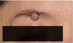 ブリスクリニックのホクロ除去・あざ治療・イボ治療の症例写真[ビフォー]
