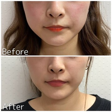 札幌クララ美容皮膚科の輪郭・顎の整形の症例写真