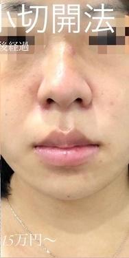 小鼻縮小術切開の症例写真[アフター]