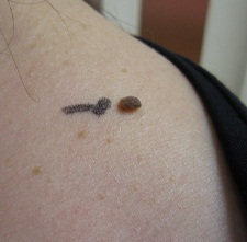 はなふさ美容皮膚科のホクロ除去・あざ治療・イボ治療の症例写真[ビフォー]