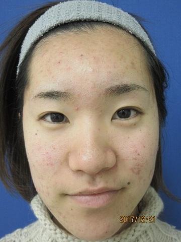 ハートライフクリニックのニキビ治療・ニキビ跡の治療の症例写真[ビフォー]