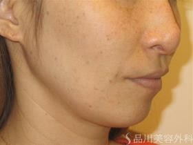 品川美容外科のシミ治療(シミ取り)・肝斑・毛穴治療の症例写真[ビフォー]